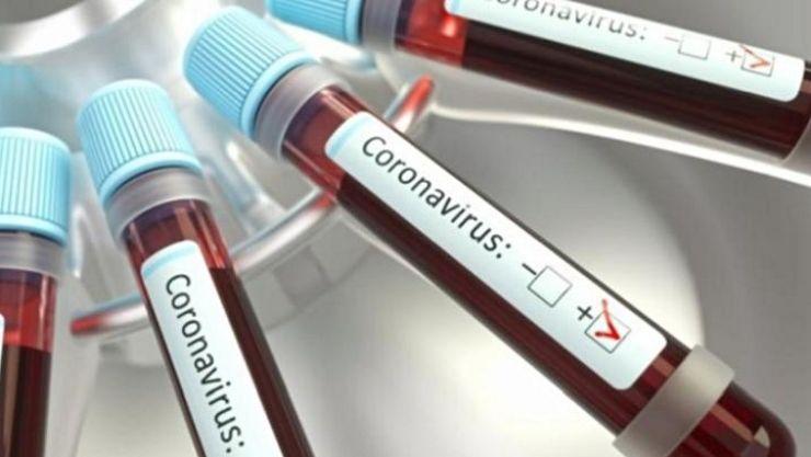 Ministerul Sănătății a publicat lista cu centrele în care te poți testa de coronavirus