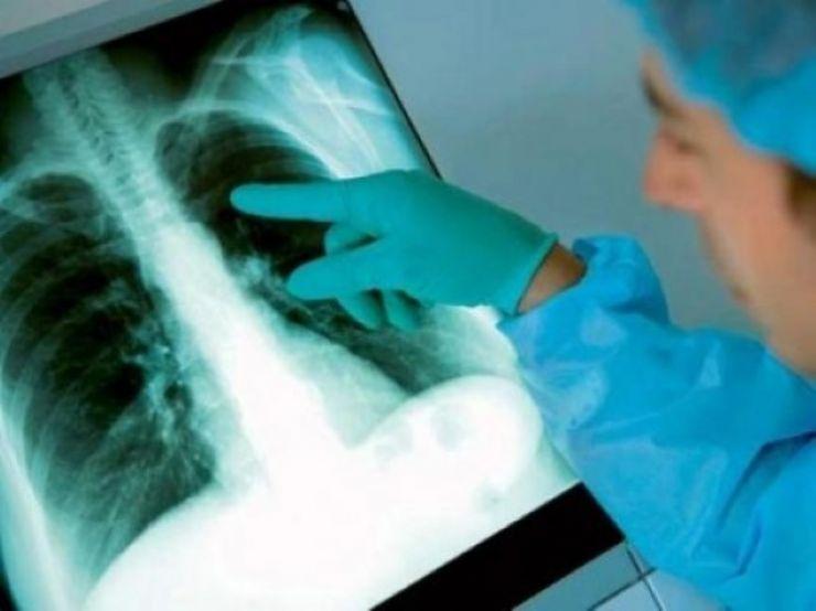 Elevă suspectă de TBC, internată în spital